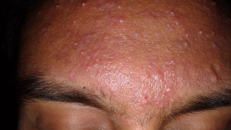 How To Treat Acne With Darker Skin